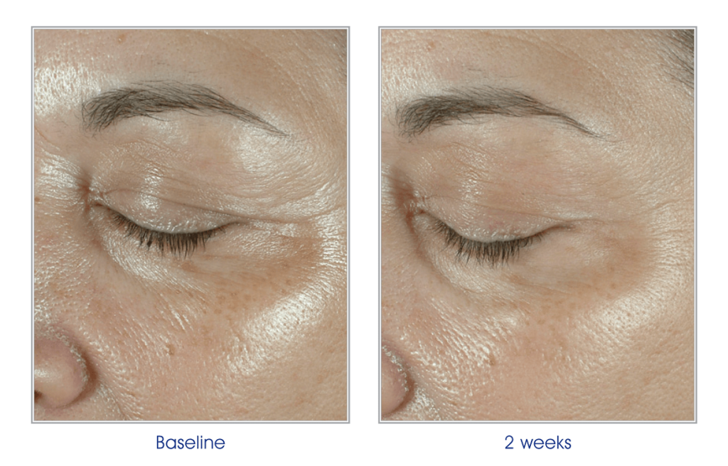 Elastiderm eye treatment mkskin clinic milton keynes the formula also contains caffeine to help alleviate under eye puffiness and malonic acid to help exfoliate dulling dead skin cells ccuart Images